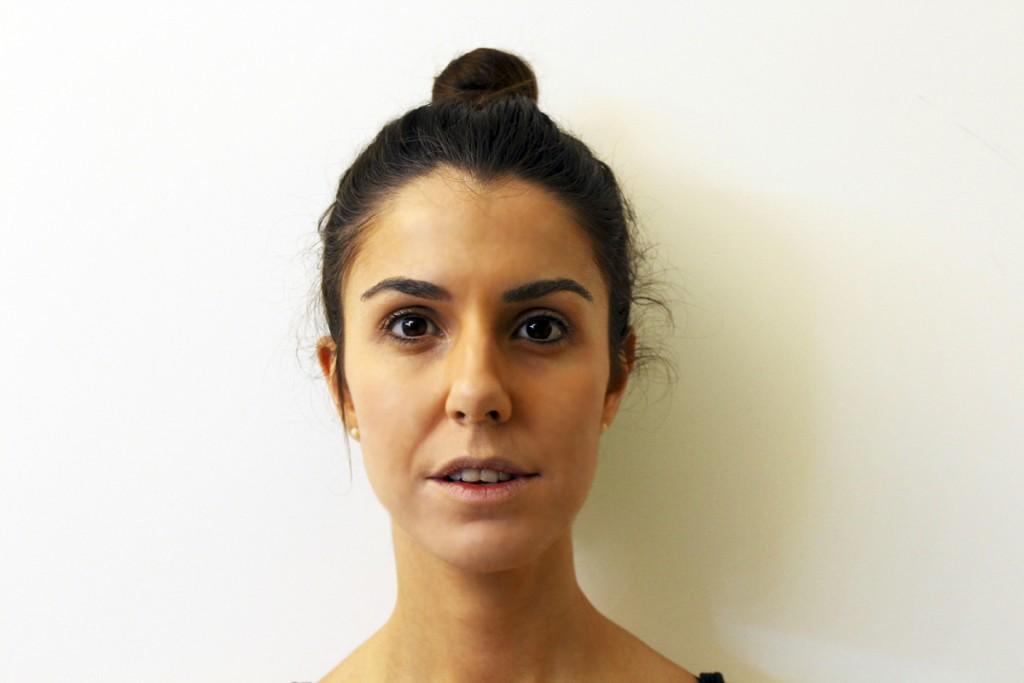 El pulido de la persona con el fin de la liberación de las consecuencias del acné
