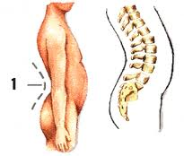 Se puede exprimirse a la osteocondrosis